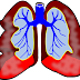 Asthama:: symtoms, causes and Treatments