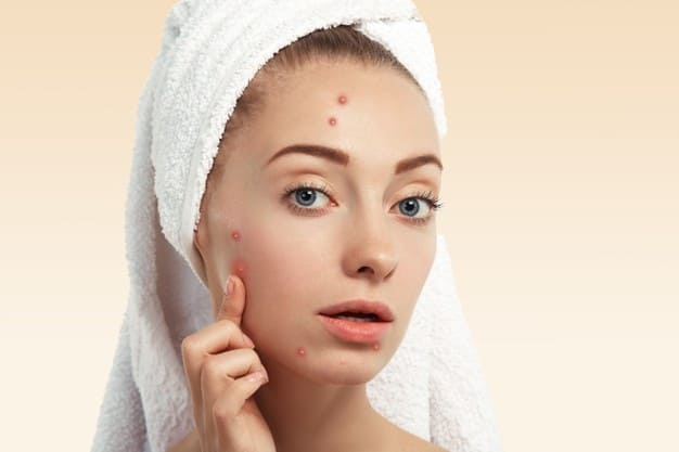 Fast-acting acne physiotherapy