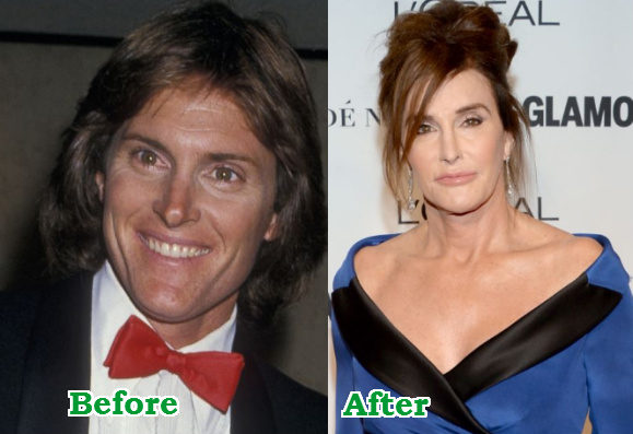 caityln jenner sex change regret