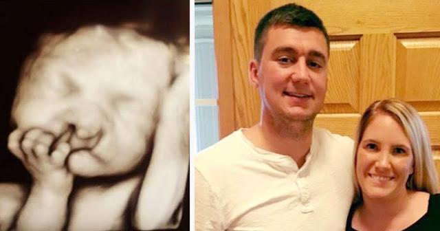 Родители не стали делать аборт из-за деформации губы у ребенка – взгляните, как он выглядит сейчас