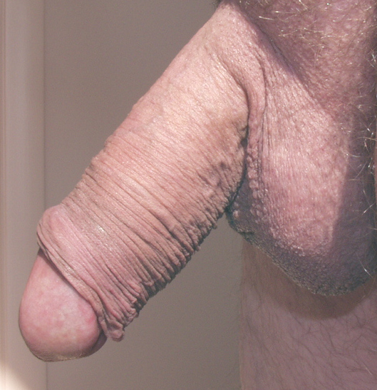 Willingly accept. retractable foreskin male