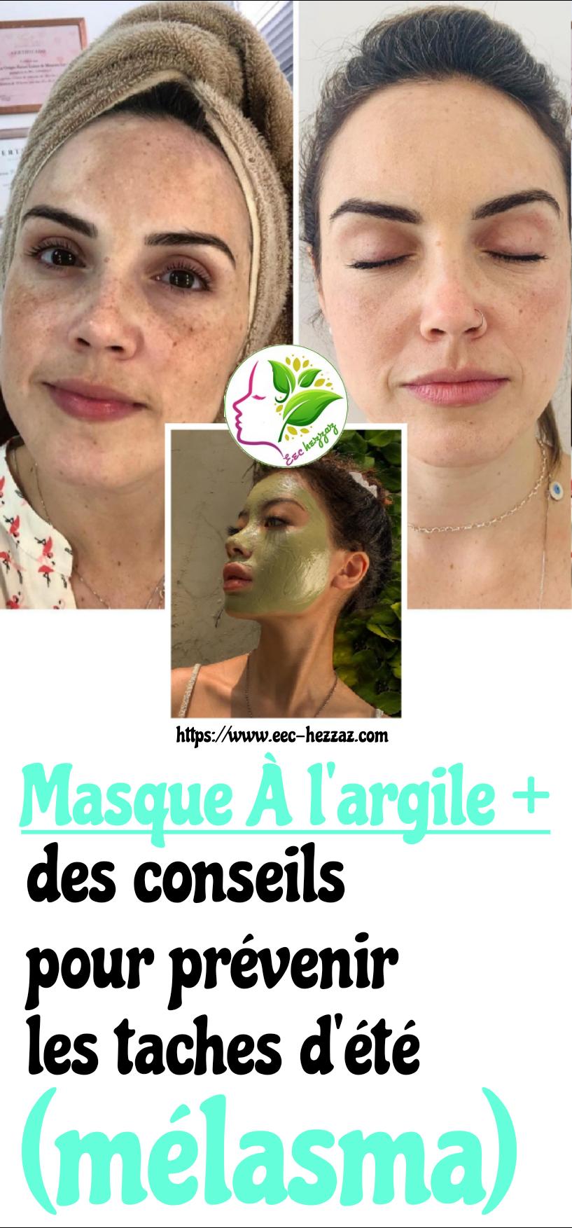 Masque à l'argile + des conseils pour prévenir les taches d'été (mélasma)