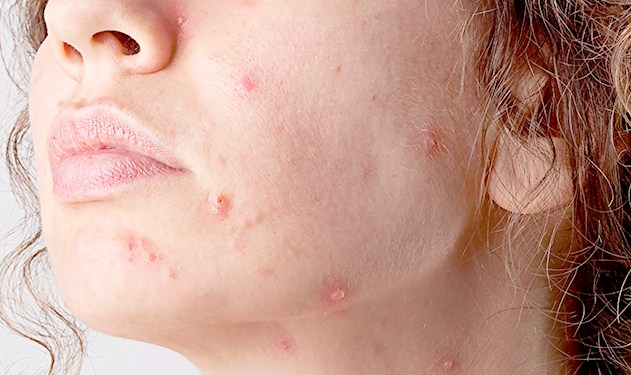 Facial Skin Cancer Symptoms And Ways Of Prevention Health