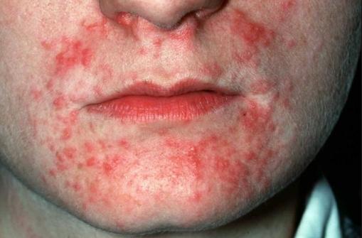 Ageless Beauty, Timeless Skin Dermatitises Skin -4374