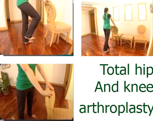 Total hip and knee arthroplasty