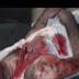 Colisão entre carros deixa três pessoas feridas na PB-411 na cidade de Triunfo