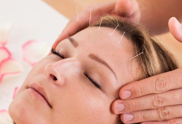 Efektif Terapi Akupuntur Untuk Mengatasi Migrain