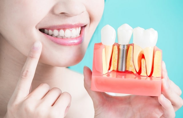 all about dental implants confident smile
