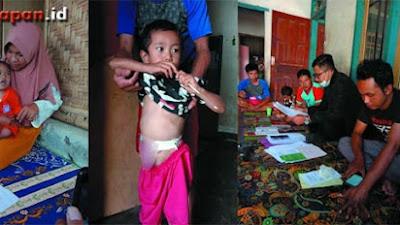 Anak Ini Lahir Tanpa Anus, LP2M Mitra Sehati dan GMF Peduli Lotim Langsung Tanggap