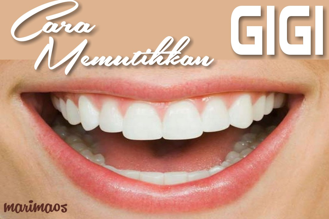 Cara Menghilangkan Plak Kuning Di Gigi Agar Gigi Putih Bersih Marimaos