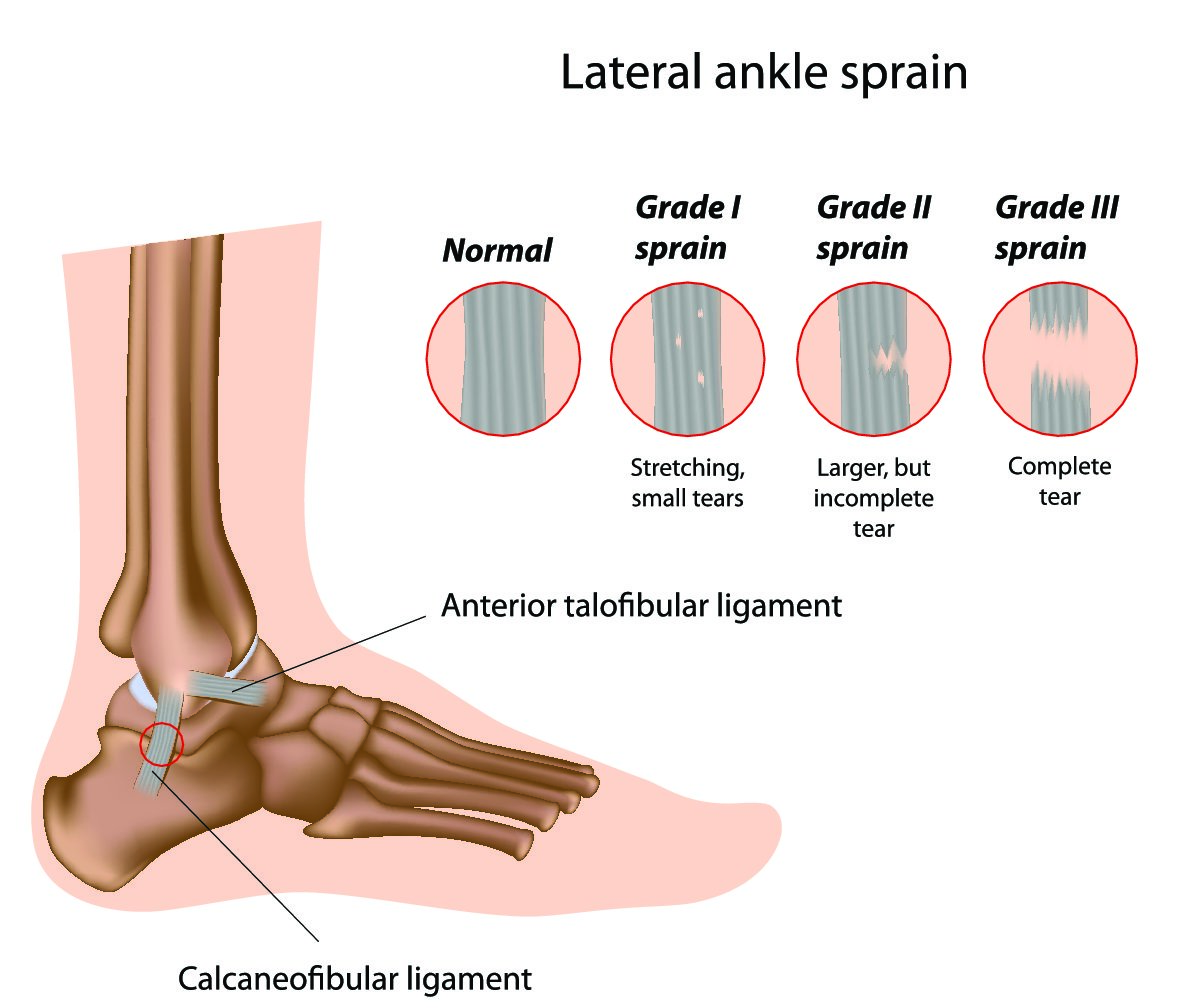 3 Ways To Prevent Ankle Injuries