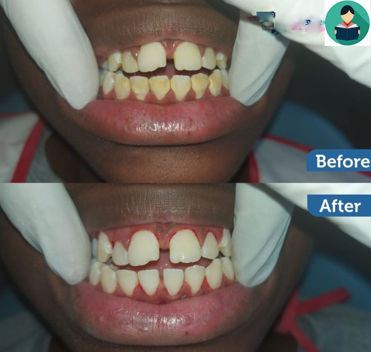 10 Best Teeth Whitening Clinics in Nairobi