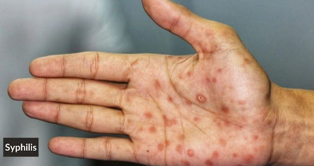 symptoms of syphilis std sexually transmitted disease