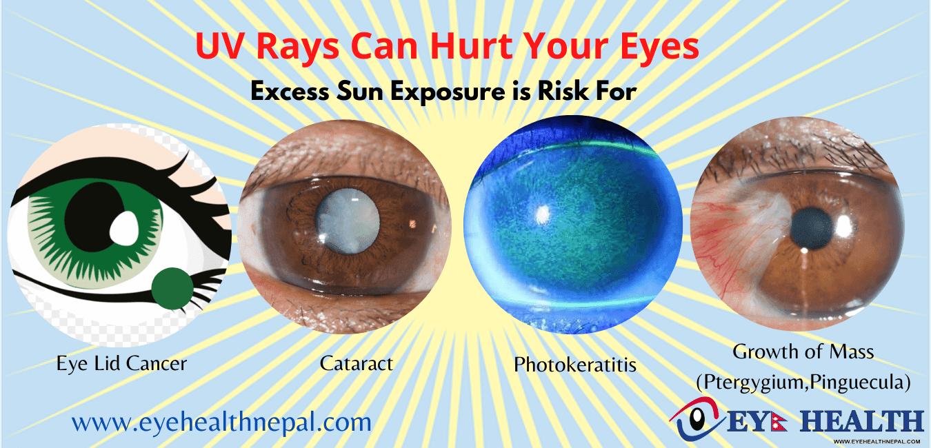 UV rays effects on eyes like cancer, cataract, photokeratitis and pterygium