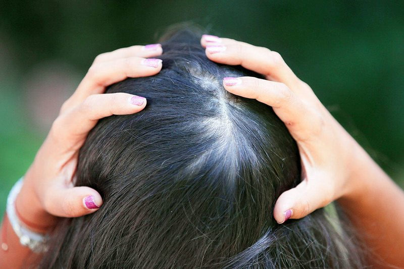 Los tratamientos de Pamela Leiva para combatir la alopecia femenina
