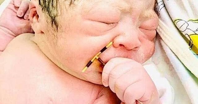 Heboh Bayi di Vietnam Lahir dengan Memegang KB Spiral sang Mama