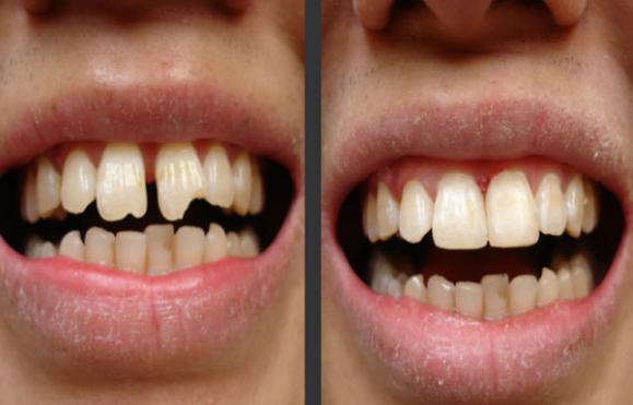 टेढ़े मेढ़े दांतों को सीधा करने का तरीका