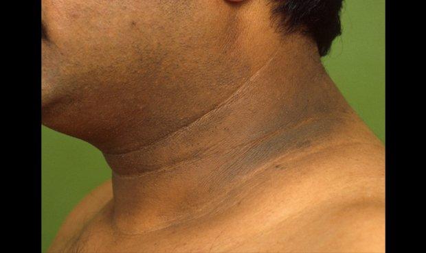 Imágenes de diabetes en el cuello de los niños.
