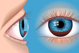 Vitamin Untuk Mata Dan Dosis Harian Untuk Mata