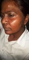 बागपत की महिला अधिवक्ता पर जानलेवा हमला