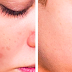 Easy Steps On How To Get Rid Of Black Spots On Your Face Safe And Fast