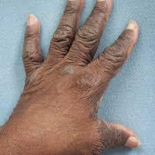 Obat budug dan eksim pada kaki dan sela sela jari