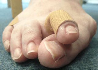 Overlapping Toes Pictures, Causes, Surgery, Exercises