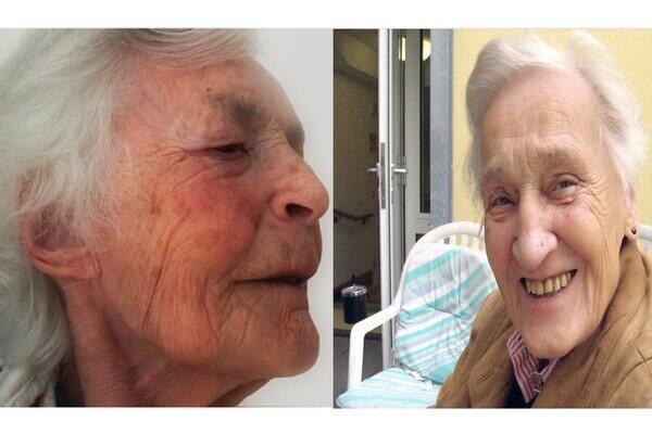 علاجات منزلية للتخلص من اثار الشيخوخة والبقع الداكنة