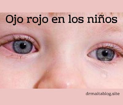 Ojo rojo en niños