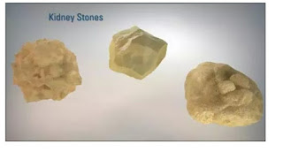 Causes of renal stones