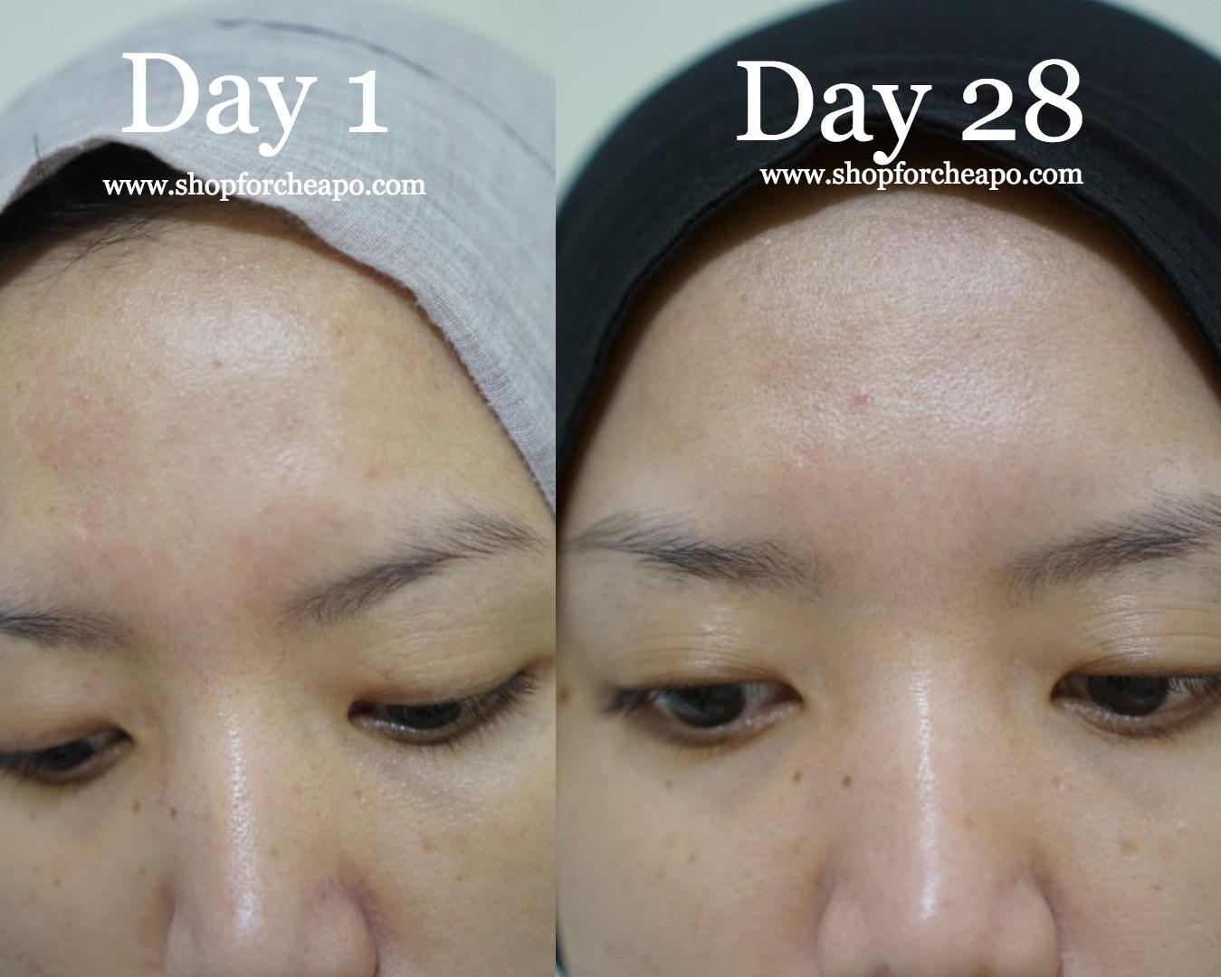 close up bagian kening hari ke 1 dan hari ke 28