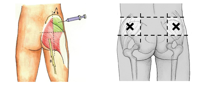 HOW TO PUT INTRAMUSCULAR INJECTION