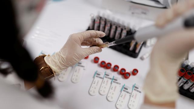 Coronavirus - Hoy se confirmaron 825 casos positivos nuevos y 4 fallecidos