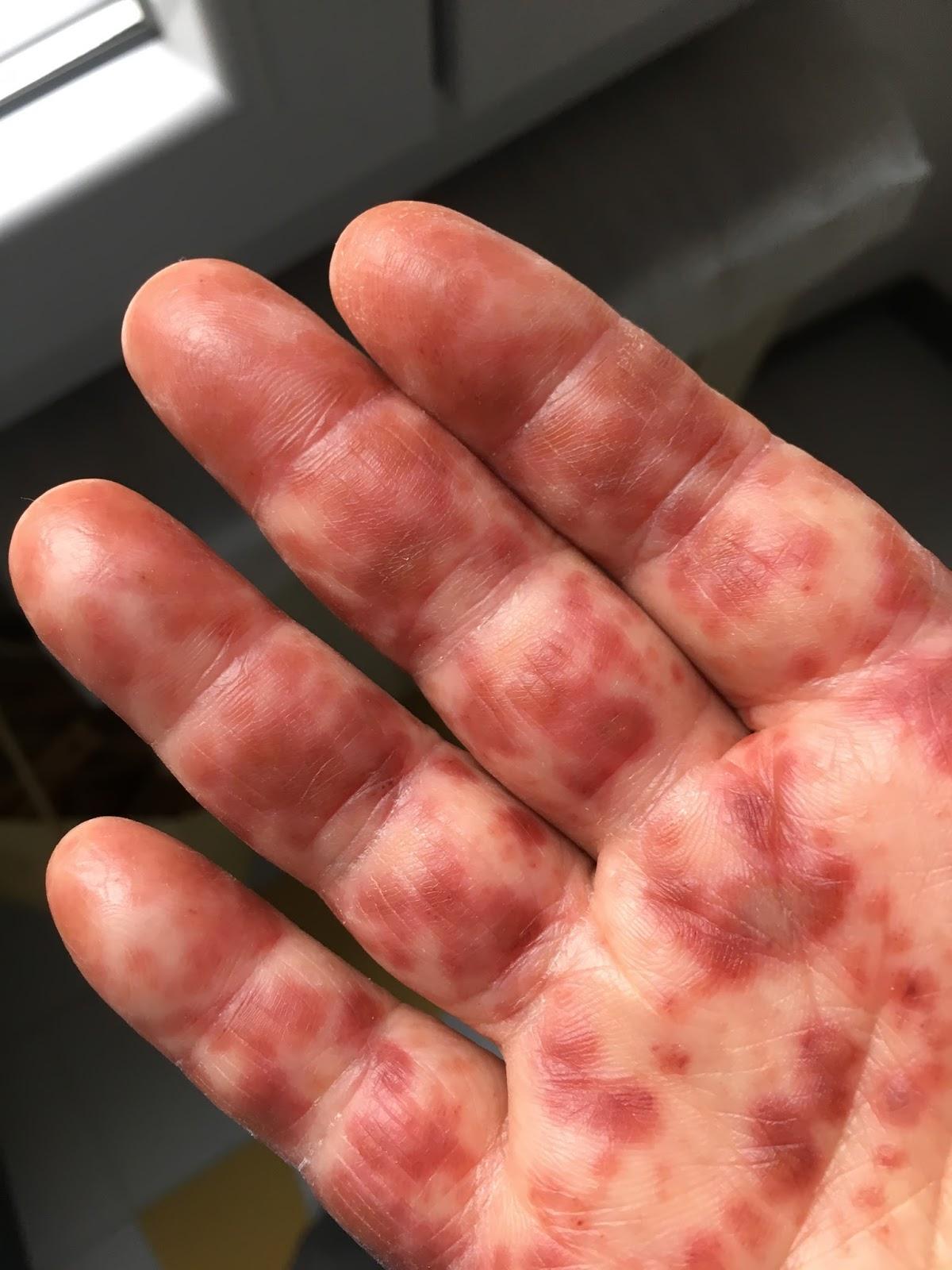 Bocca mani piedi gli adulti manifestano sintomi lievi for Bocca mani piedi si puo fare il bagno
