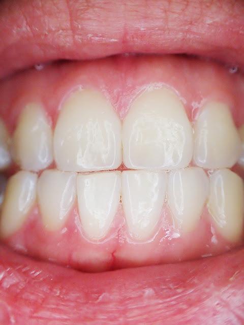 طرق سهلة ورخيصة لتبييض اصفرار الأسنان