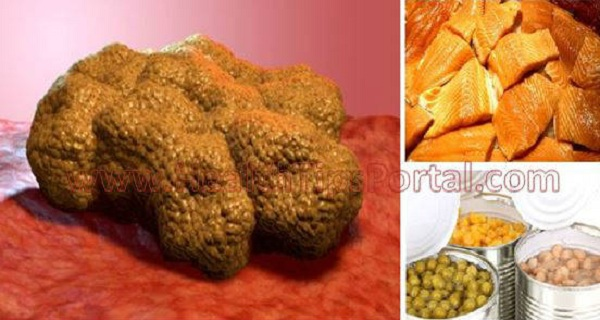 These Foods Make Cancer Cells Grow in Your Body! Stop Eating Them Right Now!