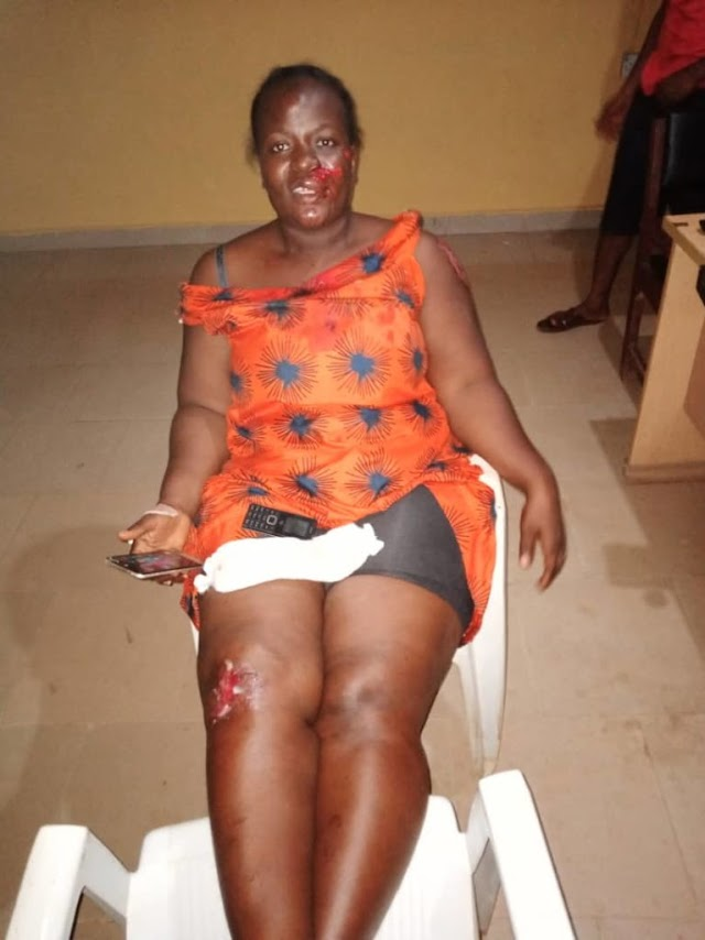 MID WIFE INJURED BY POLICE IN ONDO STATE