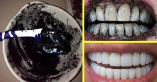 وصفة تبييض الأسنان لإزالة الاصفرار فى دقائق وعلاج التهاب اللثة وصفة طبيعية مضمونة