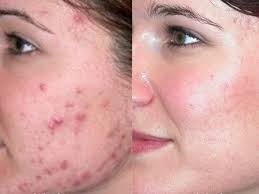 Pimples Free Face