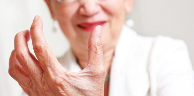 Rheumatoid arthritis medications list