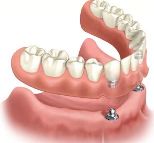 รากฟันปลอมและฟันปลอมถอดได้