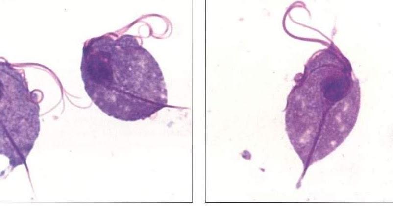 gonococcus Trichomonas vaginalis szal