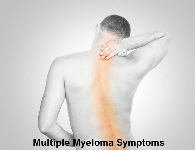 Multiple Myeloma Symptoms of End Stage