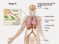 Stage 4 Lung Cancer Survival Rate - Be Informed