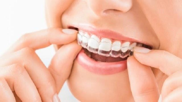أسهل الطرق لعلاج اصفرار الأسنان في 8خطوات فقط.