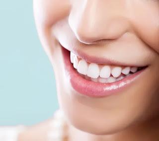 Cara Alami Putihkan Gigi Dengan Cepat Dan Berhasil