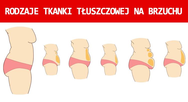 Rodzaje tkanki tłuszczowej na brzuchu
