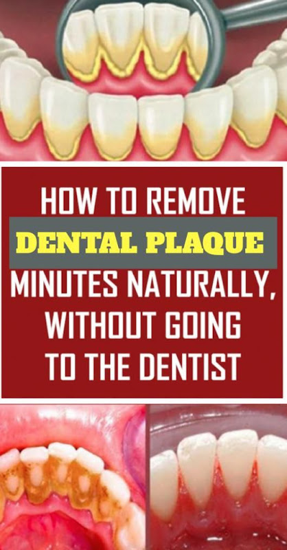 How To Remove Dental Plaque In 5 Minutes Naturally, Without Going To The Dentist (Details)