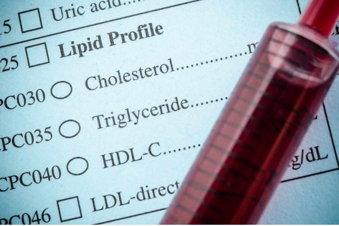 El colesterol es una sustancia muy similar a la grasa y se encuentra en todo el organismo, y posee gran importancia ya que este ayuda, como se ha mencionado anteriormente, a la producción de hormonas y vitamina D.