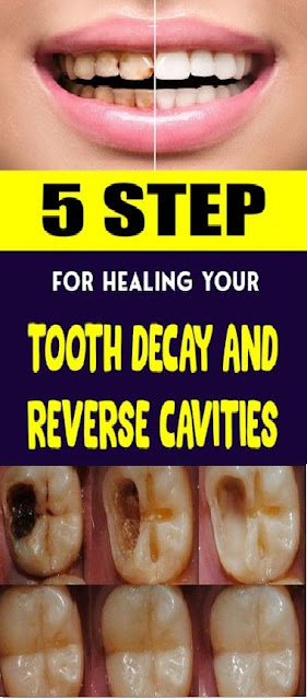 5 Steps For Healing Your Tooth Decay And Reverse Cavities